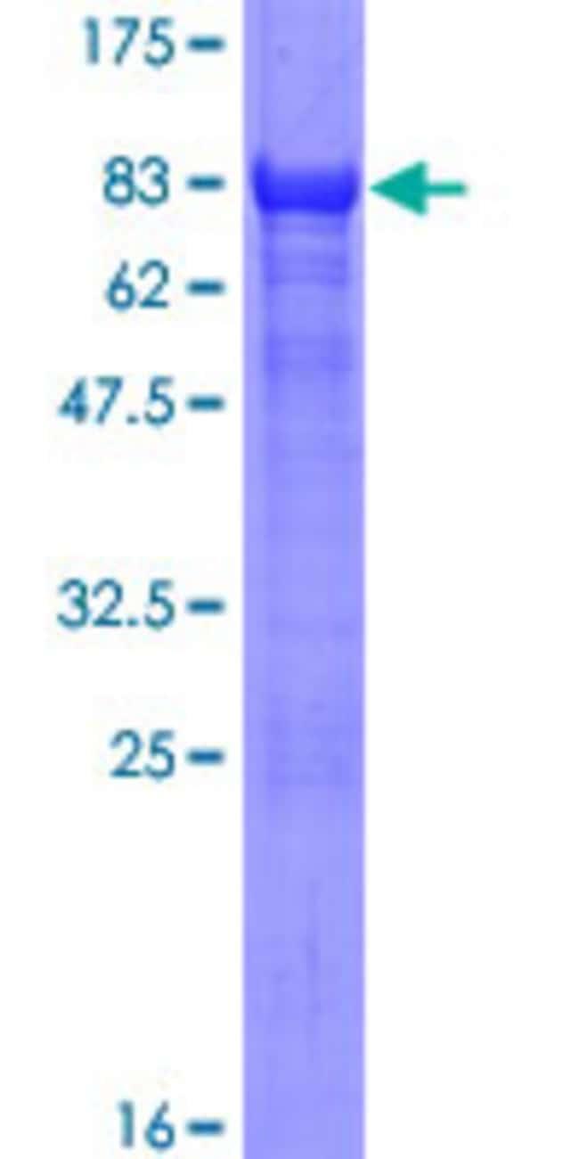 AbnovaHuman AHCYL1 Full-length ORF (NP_006612.2, 1 a.a. - 530 a.a.) Recombinant