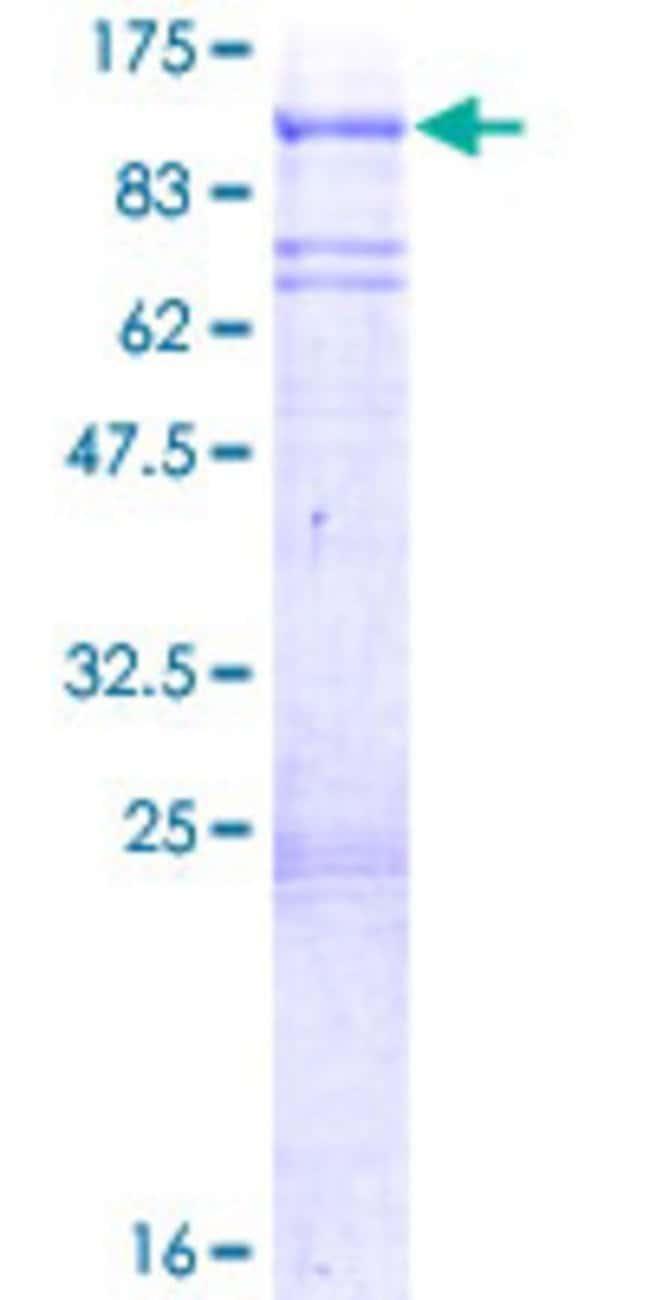 AbnovaHuman PLK2 Full-length ORF (NP_006613.2, 1 a.a. - 685 a.a.) Recombinant