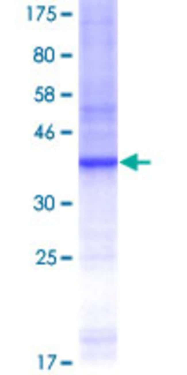 Abnova™Human PLK2 Partial ORF (AAH13879, 585 a.a. - 685 a.a.) Recombinant Protein with GST-tag at N-terminal 25μg Abnova™Human PLK2 Partial ORF (AAH13879, 585 a.a. - 685 a.a.) Recombinant Protein with GST-tag at N-terminal