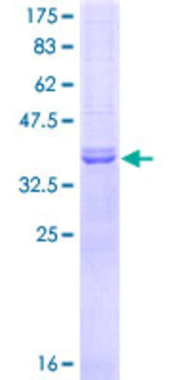 AbnovaHuman NEK6 Partial ORF (AAH00101, 1 a.a. - 100 a.a.) Recombinant
