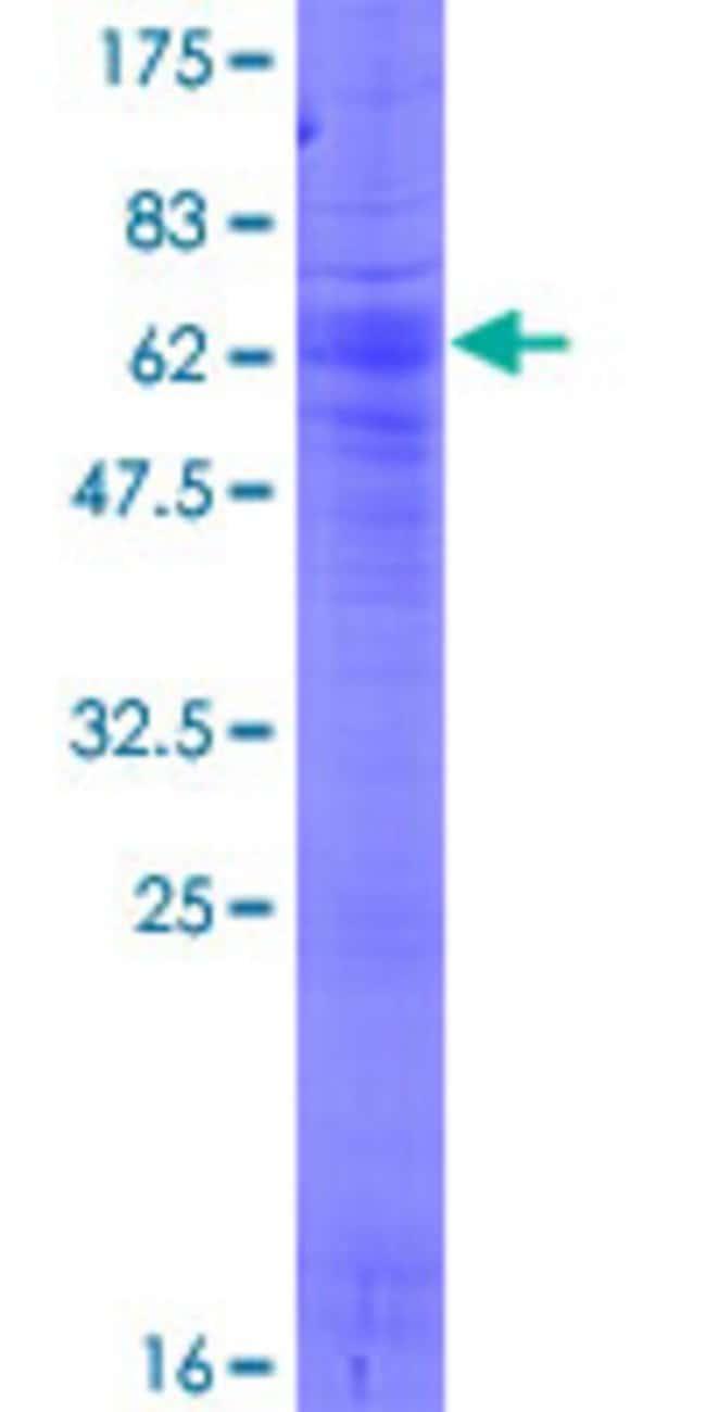 AbnovaHuman SLC17A3 Full-length ORF (AAH17952.1, 1 a.a. - 420 a.a.) Recombinant