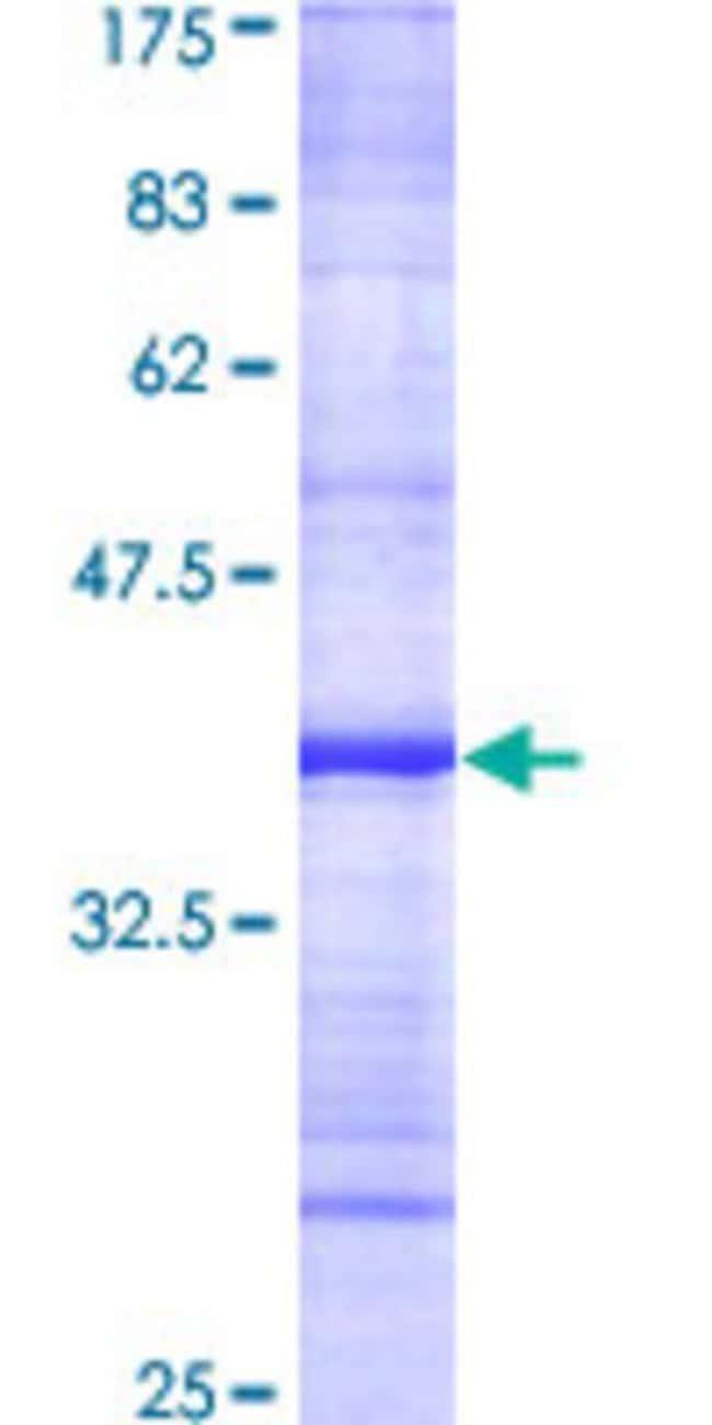 Abnova™Human NCKAP1 Partial ORF (AAH15025, 1 a.a. - 110 a.a.) Recombinant Protein with GST-tag at N-terminal 25μg Abnova™Human NCKAP1 Partial ORF (AAH15025, 1 a.a. - 110 a.a.) Recombinant Protein with GST-tag at N-terminal