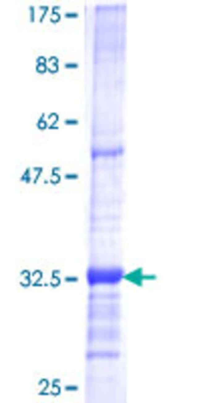 Abnova™Human RPP40 Partial ORF (NP_006629, 295 a.a. - 363 a.a.) Recombinant Protein with GST-tag at N-terminal 10μg Abnova™Human RPP40 Partial ORF (NP_006629, 295 a.a. - 363 a.a.) Recombinant Protein with GST-tag at N-terminal