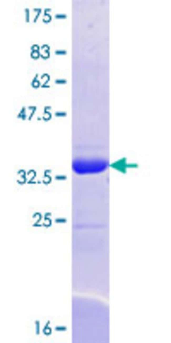 AbnovaHuman SEC24A Partial ORF (XP_094581.5, 301 a.a. - 390 a.a.) Recombinant