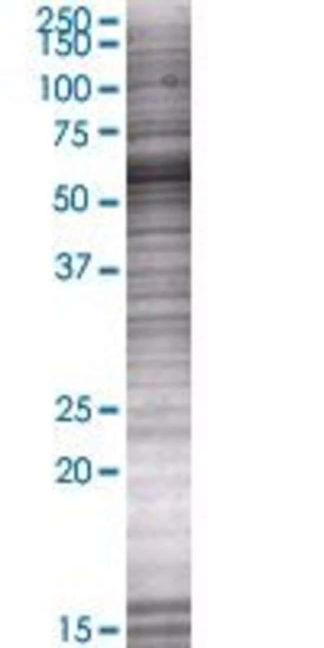 Abnova NOXA1 293T Cell Transient Overexpression Lysate (Denatured) (T01)