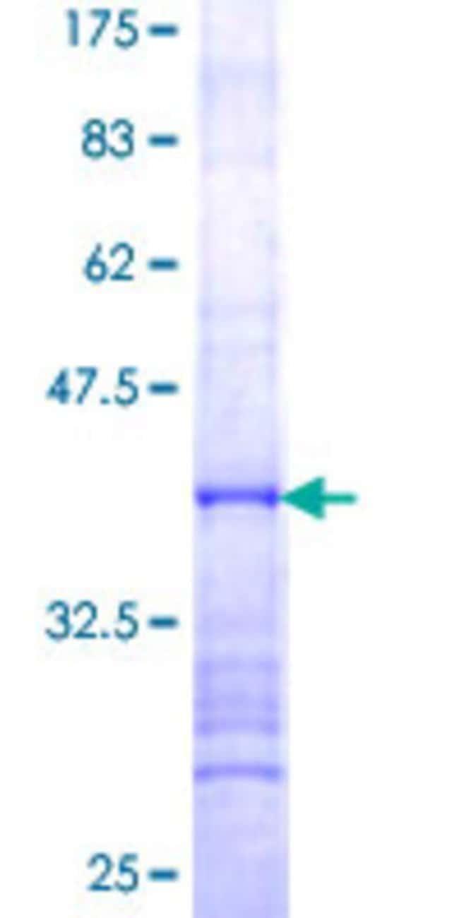 AbnovaHuman UTP14A Partial ORF (NP_006640, 672 a.a. - 770 a.a.) Recombinant