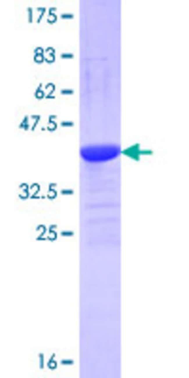 Abnova Human NEU3 Partial ORF (NP_006647.2, 411 a.a. - 520 a.a.) Recombinant