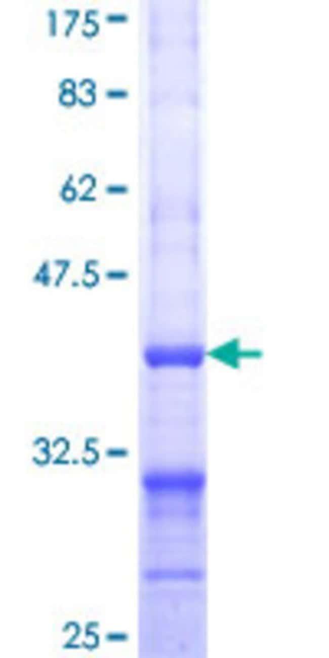 AbnovaHuman ALDH1L1 Partial ORF (NP_036322, 803 a.a. - 902 a.a.) Recombinant