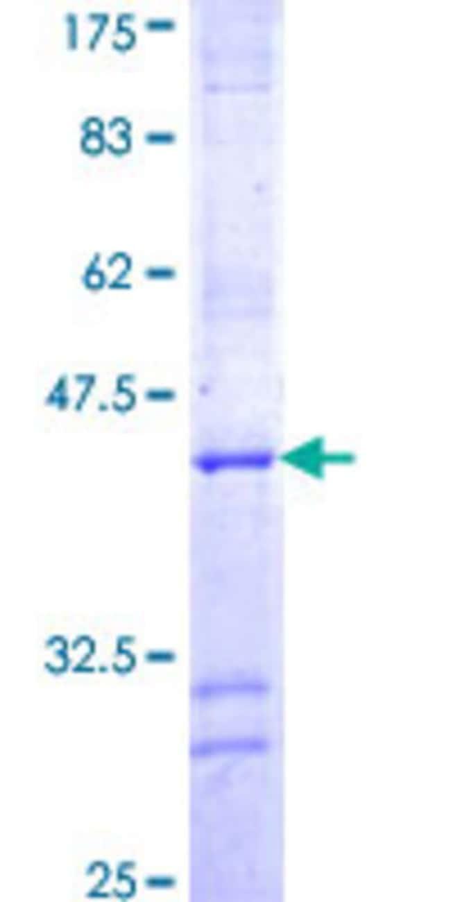 AbnovaHuman RUVBL2 Partial ORF (NP_006657, 353 a.a. - 462 a.a.) Recombinant