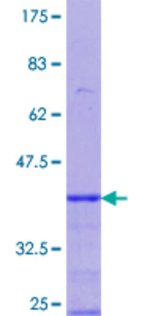 Abnova™Human PGRMC1 Partial ORF (NP_006658.1, 96 a.a. - 195 a.a.) Recombinant Protein with GST-tag at N-terminal 10μg Abnova™Human PGRMC1 Partial ORF (NP_006658.1, 96 a.a. - 195 a.a.) Recombinant Protein with GST-tag at N-terminal