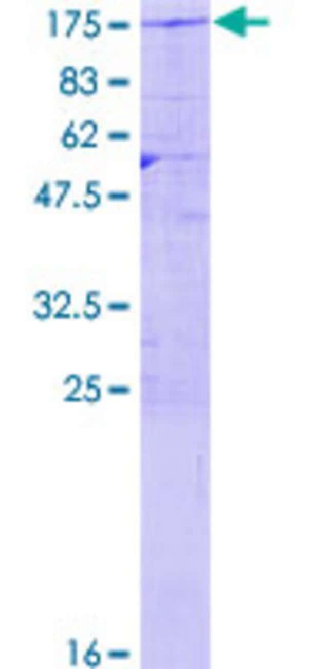 AbnovaHuman USP20 Full-length ORF (NP_001008563.1, 1 a.a. - 913 a.a.) Recombinant