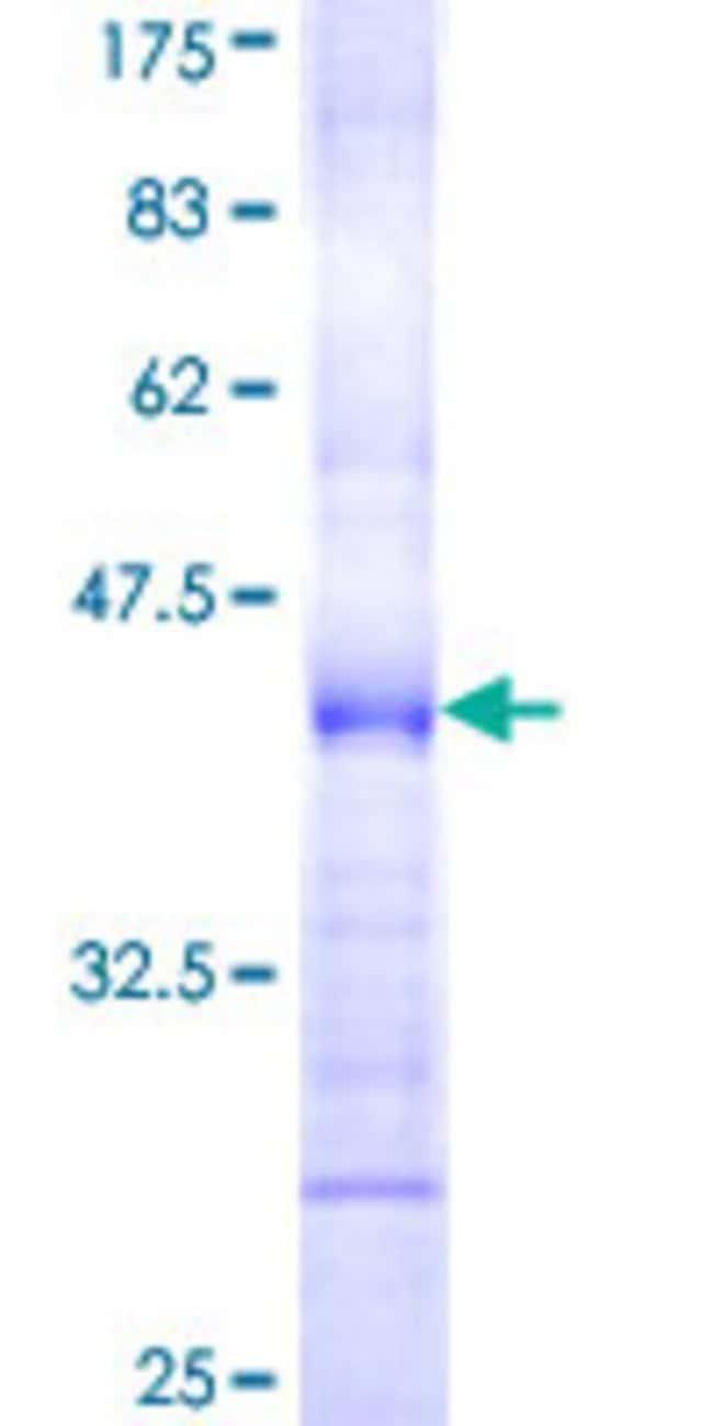AbnovaHuman CD300C Partial ORF (NP_006669, 21 a.a. - 130 a.a.) Recombinant