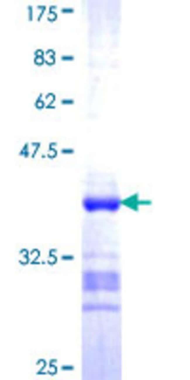 AbnovaHuman ACTL7B Partial ORF (NP_006677, 286 a.a. - 377 a.a.) Recombinant