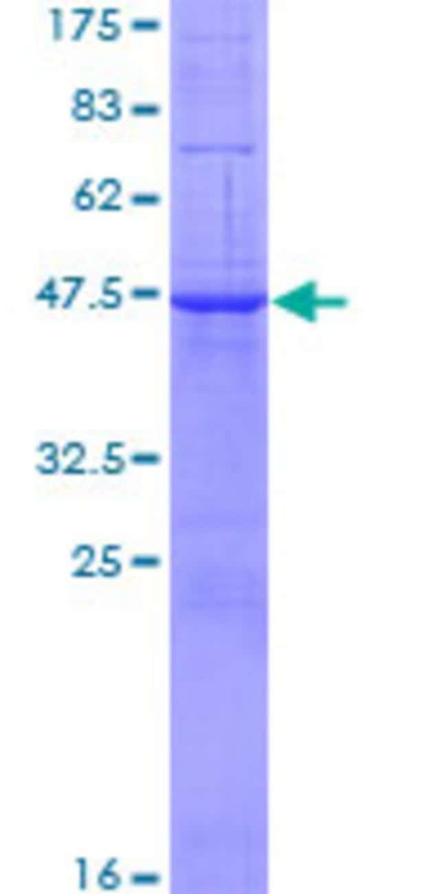 Abnova Human RAB10 Full-length ORF (AAH00896.1, 1 a.a. - 200 a.a.) Recombinant