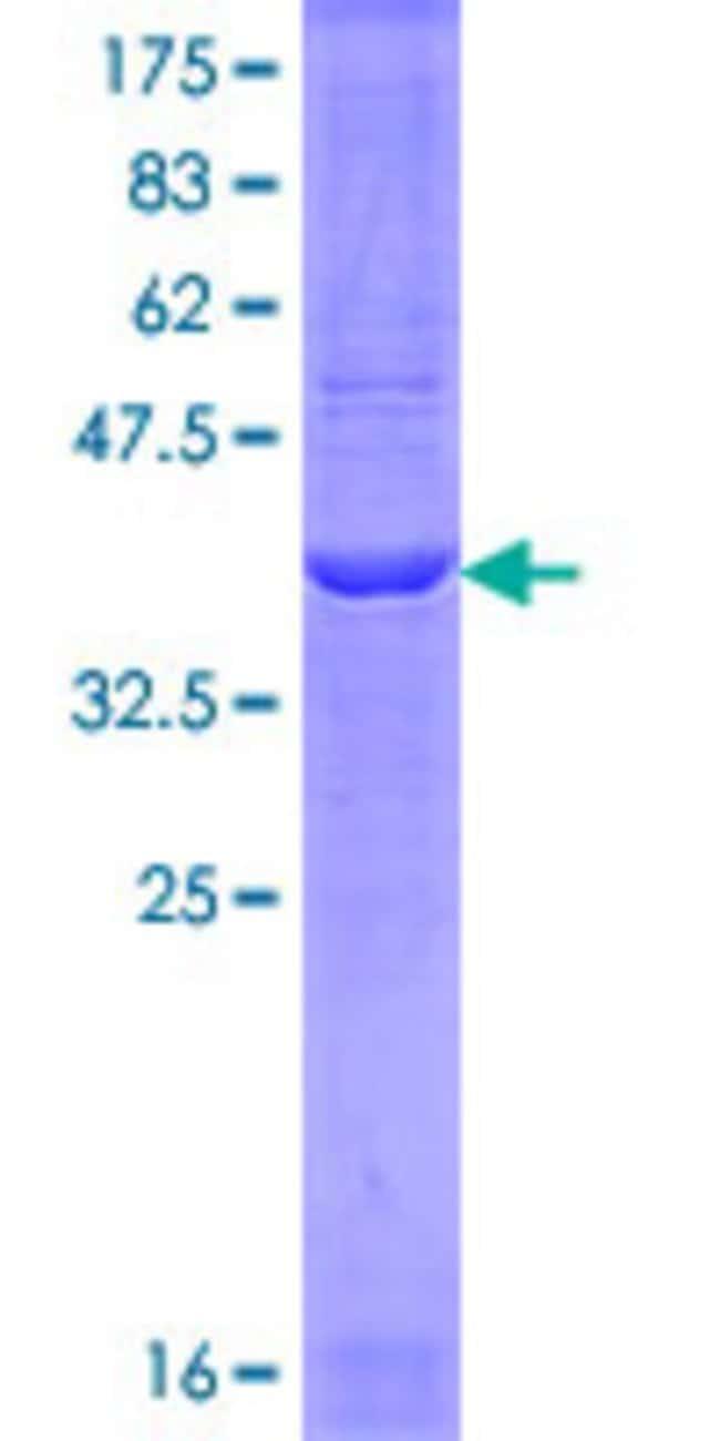 AbnovaHuman PPARGC1A Partial ORF (NP_037393, 689 a.a. - 798 a.a.) Recombinant