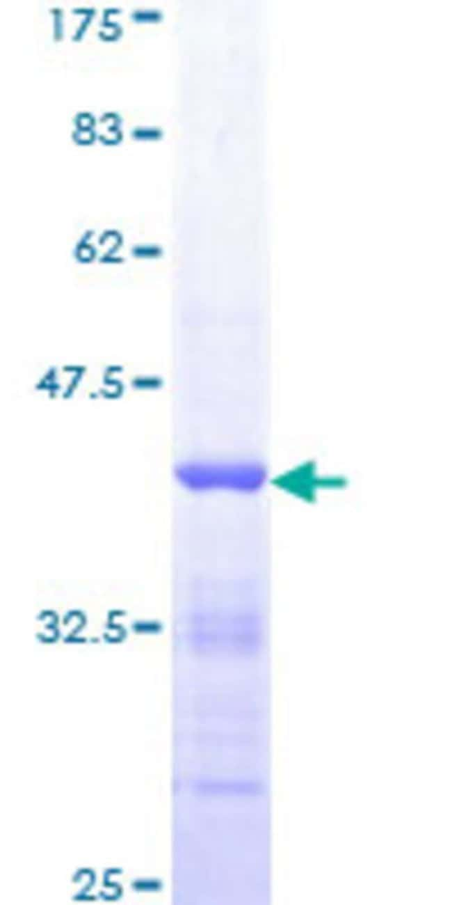 AbnovaHuman MALT1 Partial ORF (AAH30143, 685 a.a. - 784 a.a.) Recombinant