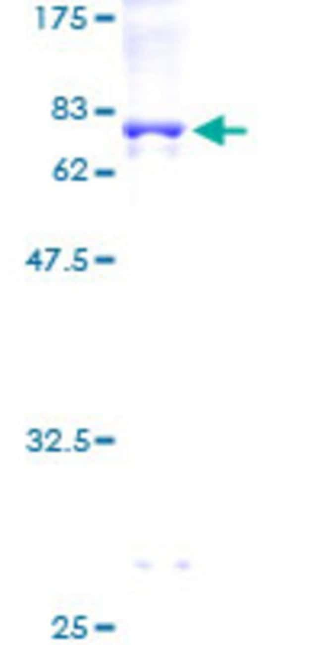 AbnovaHuman RPIP8 Full-length ORF (AAH06194, 1 a.a. - 405 a.a.) Recombinant