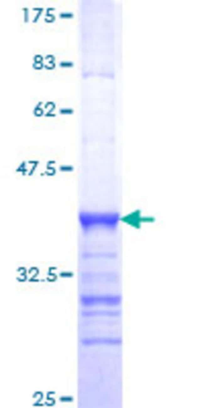 Abnova™Human BRD8 Partial ORF (NP_631938, 33 a.a. - 128 a.a.) Recombinant Protein with GST-tag at N-terminal 10μg Abnova™Human BRD8 Partial ORF (NP_631938, 33 a.a. - 128 a.a.) Recombinant Protein with GST-tag at N-terminal