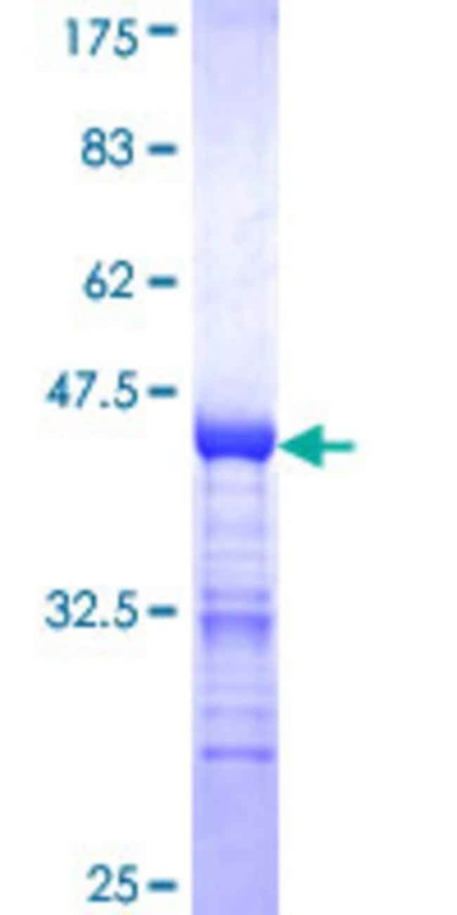 Abnova™Human MAGED2 Partial ORF (NP_055414, 16 a.a. - 125 a.a.) Recombinant Protein with GST-tag at N-terminal 10μg Abnova™Human MAGED2 Partial ORF (NP_055414, 16 a.a. - 125 a.a.) Recombinant Protein with GST-tag at N-terminal