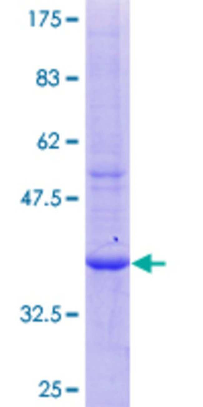 AbnovaHuman BTNL3 Partial ORF (NP_932079.1, 367 a.a. - 466 a.a.) Recombinant