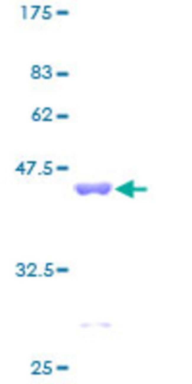 AbnovaHuman PC4 Full-length ORF (AAH10537, 1 a.a. - 127 a.a.) Recombinant