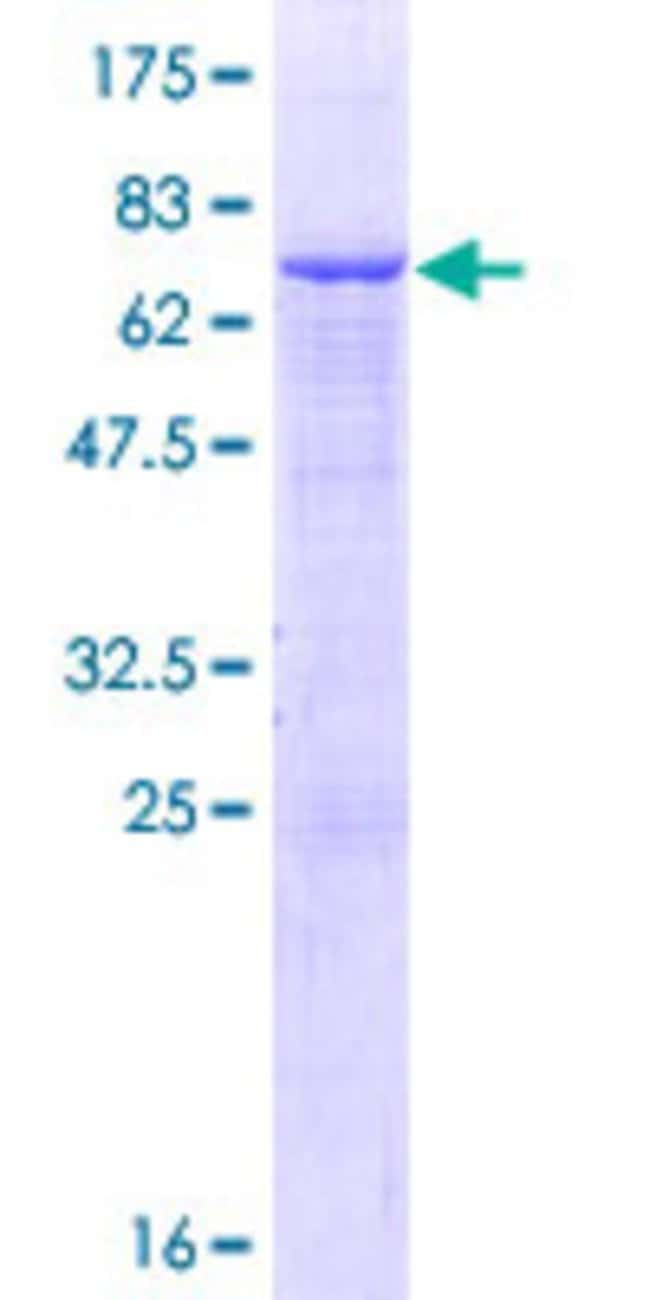 AbnovaHuman SMPDL3A Full-length ORF (NP_006705.1, 1 a.a. - 453 a.a.) Recombinant