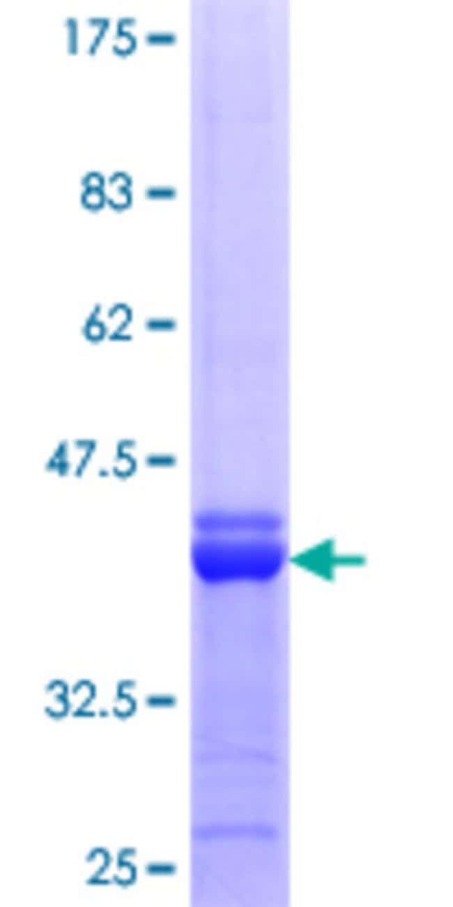 AbnovaHuman APOBEC2 Partial ORF (NP_006780.1, 125 a.a. - 224 a.a.) Recombinant