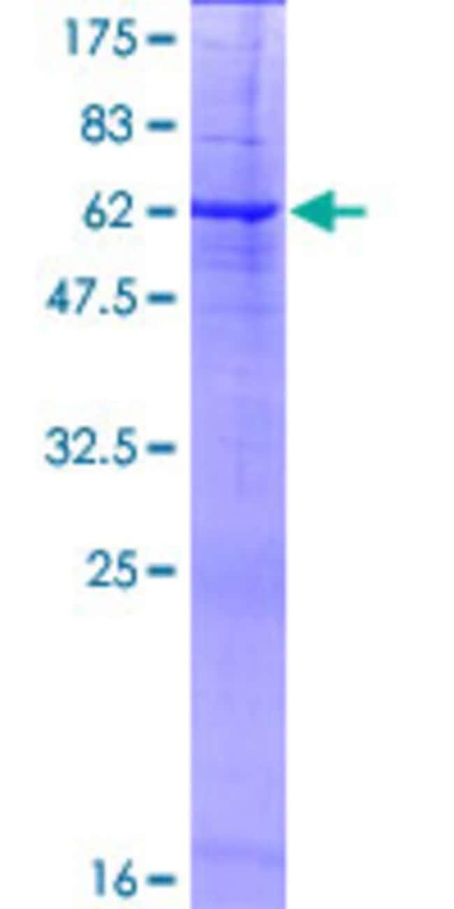 AbnovaHuman PRSS21 Full-length ORF (NP_006790.1, 1 a.a. - 314 a.a.) Recombinant