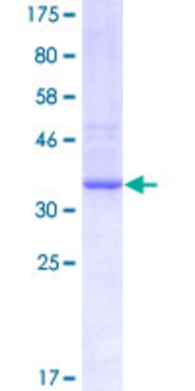 AbnovaHuman PRSS21 Partial ORF (NP_006790, 121 a.a. - 220 a.a.) Recombinant