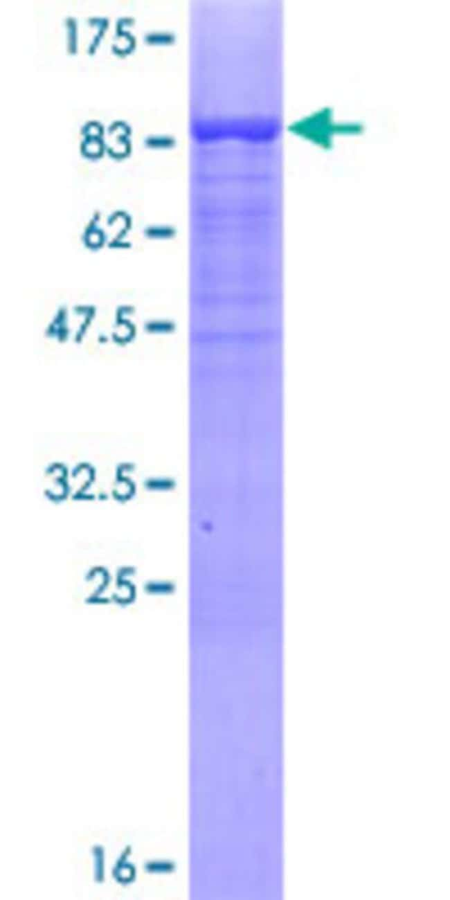 Abnova™Human MSL3L1 Full-length ORF (AAH31210.1, 1 a.a. - 521 a.a.) Recombinant Protein with GST-tag at N-terminal 10μg Abnova™Human MSL3L1 Full-length ORF (AAH31210.1, 1 a.a. - 521 a.a.) Recombinant Protein with GST-tag at N-terminal