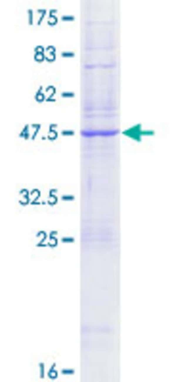 Abnova Human KDELR1 Full-length ORF (NP_006792.1, 1 a.a. - 212 a.a.) Recombinant