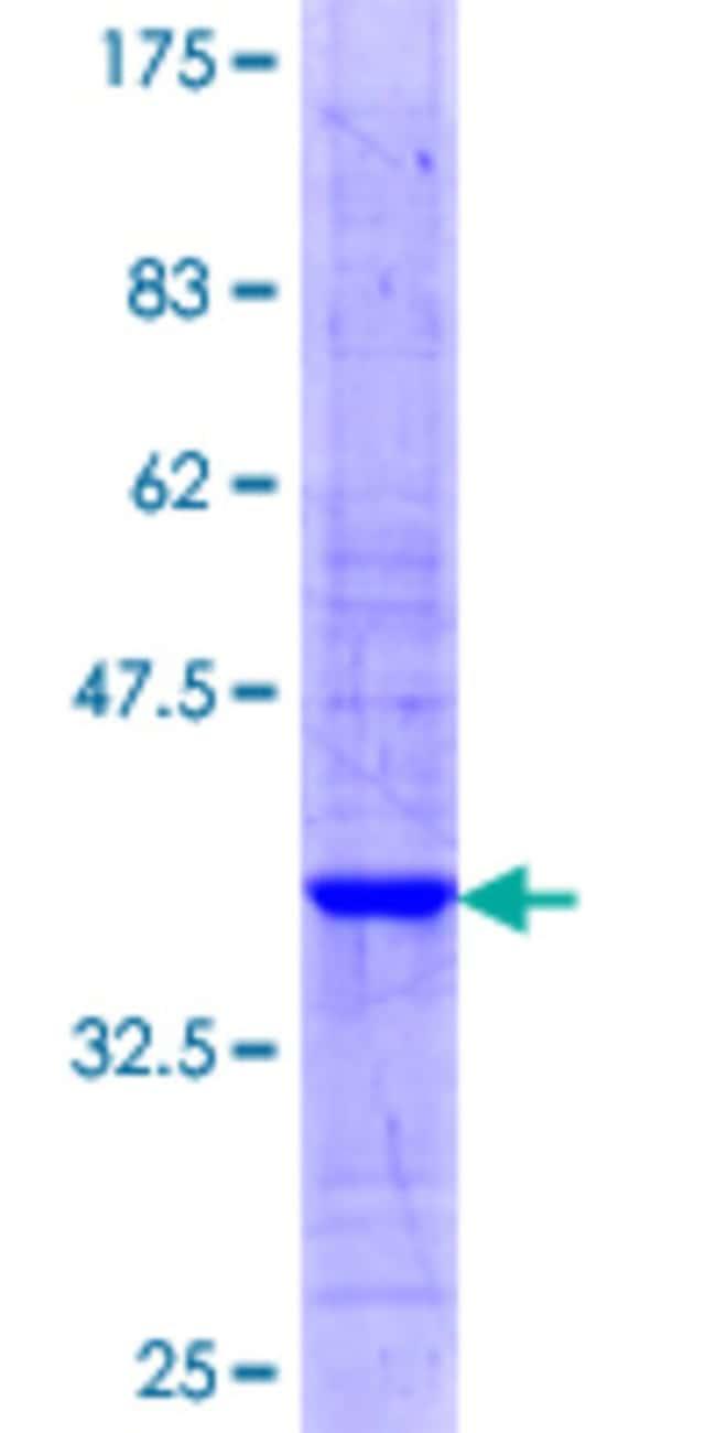 AbnovaHuman STARD3 Partial ORF (NP_006795.2, 371 a.a. - 445 a.a.) Recombinant