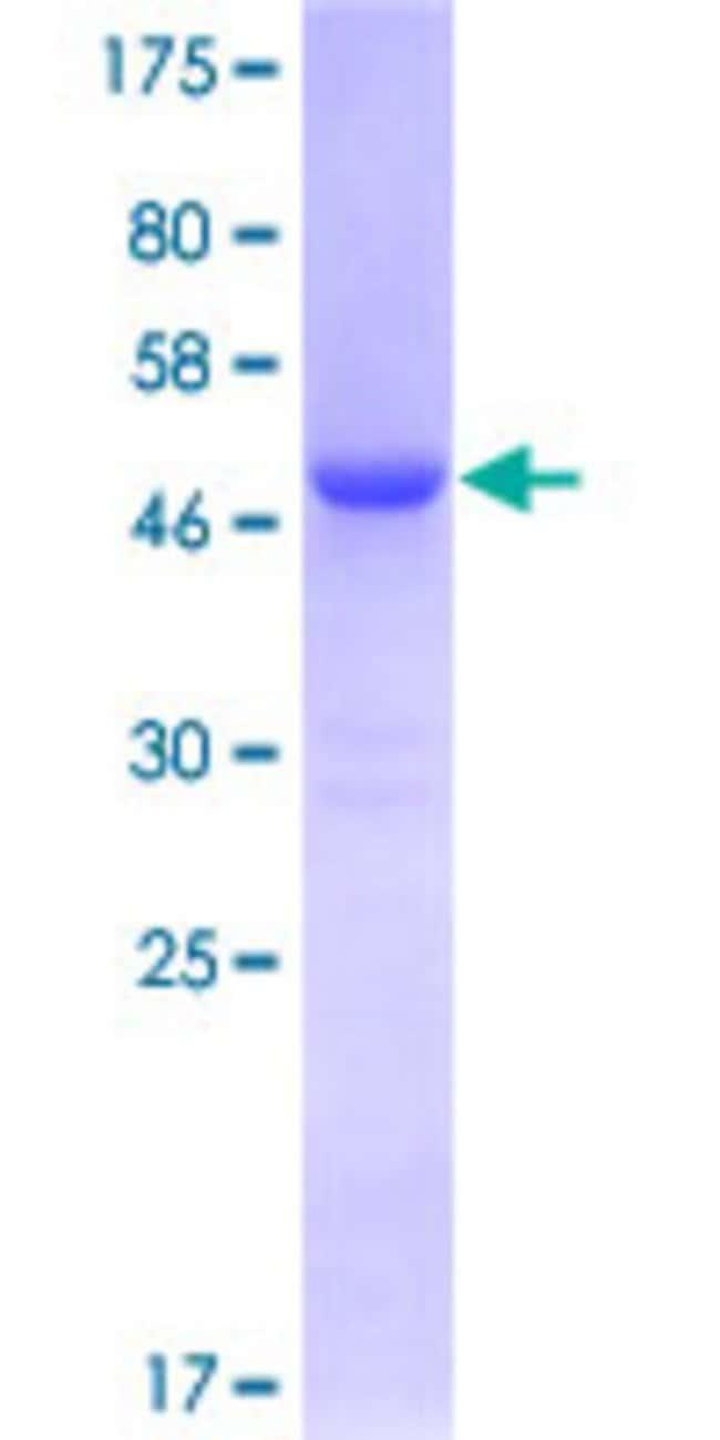 AbnovaHuman CBX1 Full-length ORF (NP_006798.1, 1 a.a. - 185 a.a.) Recombinant