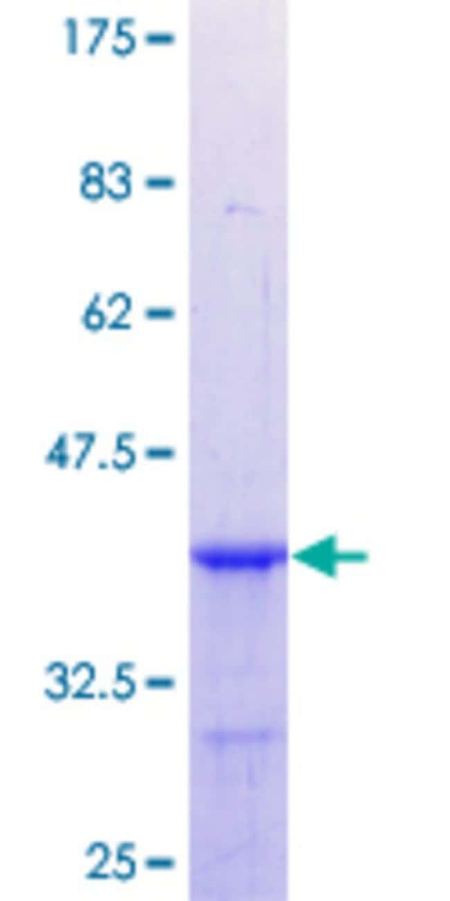 Abnova™ Human CBX1 Partial ORF (NP_006798.1, 2 a.a. - 99 a.a.) Recombinant Protein with GST-tag at N-terminal 10μg Abnova™ Human CBX1 Partial ORF (NP_006798.1, 2 a.a. - 99 a.a.) Recombinant Protein with GST-tag at N-terminal