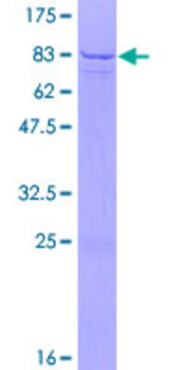 AbnovaHuman PDIA5 Full-length ORF (NP_006801.1, 1 a.a. - 519 a.a.) Recombinant