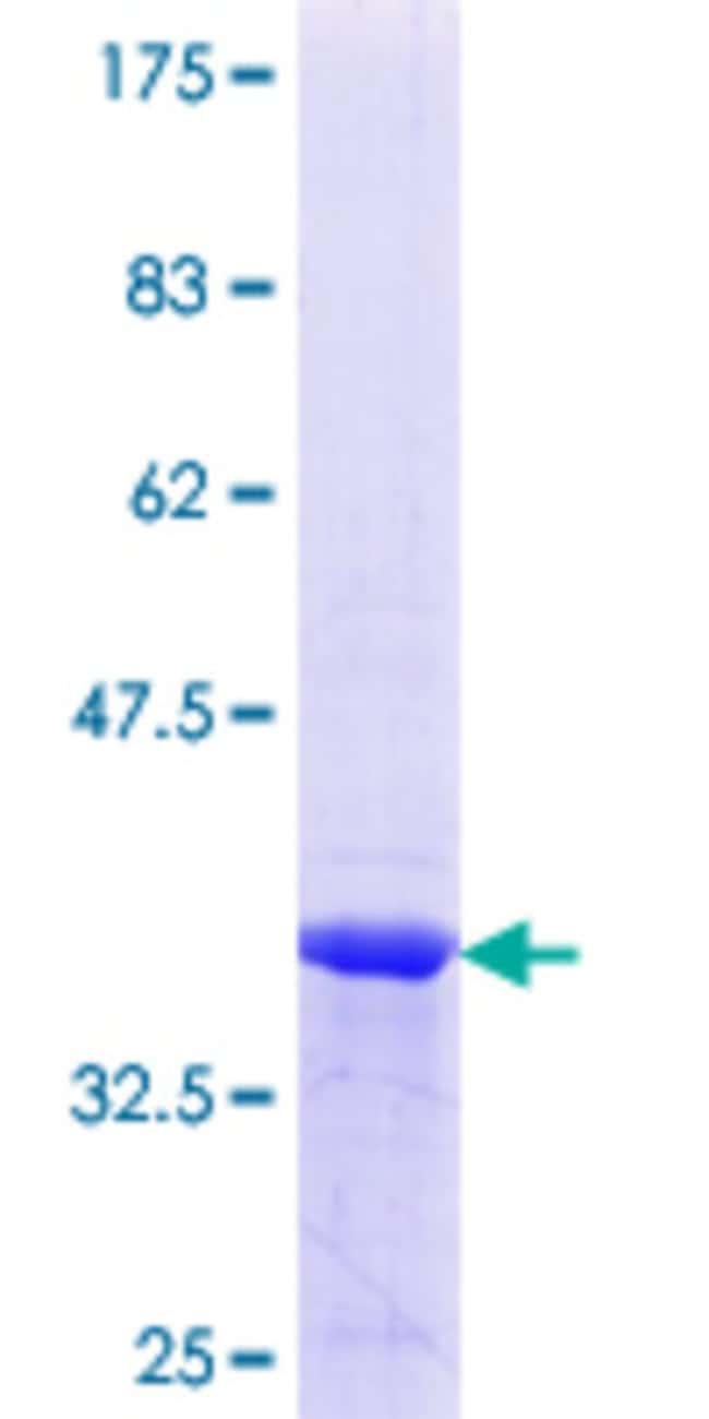 AbnovaHuman ERP29 Partial ORF (NP_006808.1, 39 a.a. - 138 a.a.) Recombinant