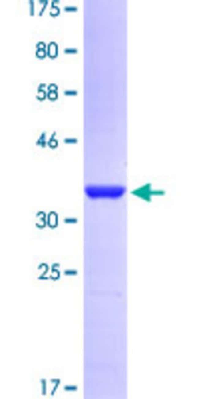 AbnovaHuman STIP1 Partial ORF (AAH02987.1, 1 a.a. - 100 a.a.) Recombinant