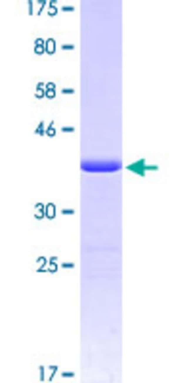 AbnovaHuman STIP1 Partial ORF (AAH02987.1, 160 a.a. - 260 a.a.) Recombinant