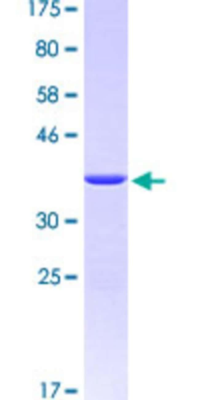 AbnovaHuman STIP1 Partial ORF (AAH02987.1, 240 a.a. - 340 a.a.) Recombinant