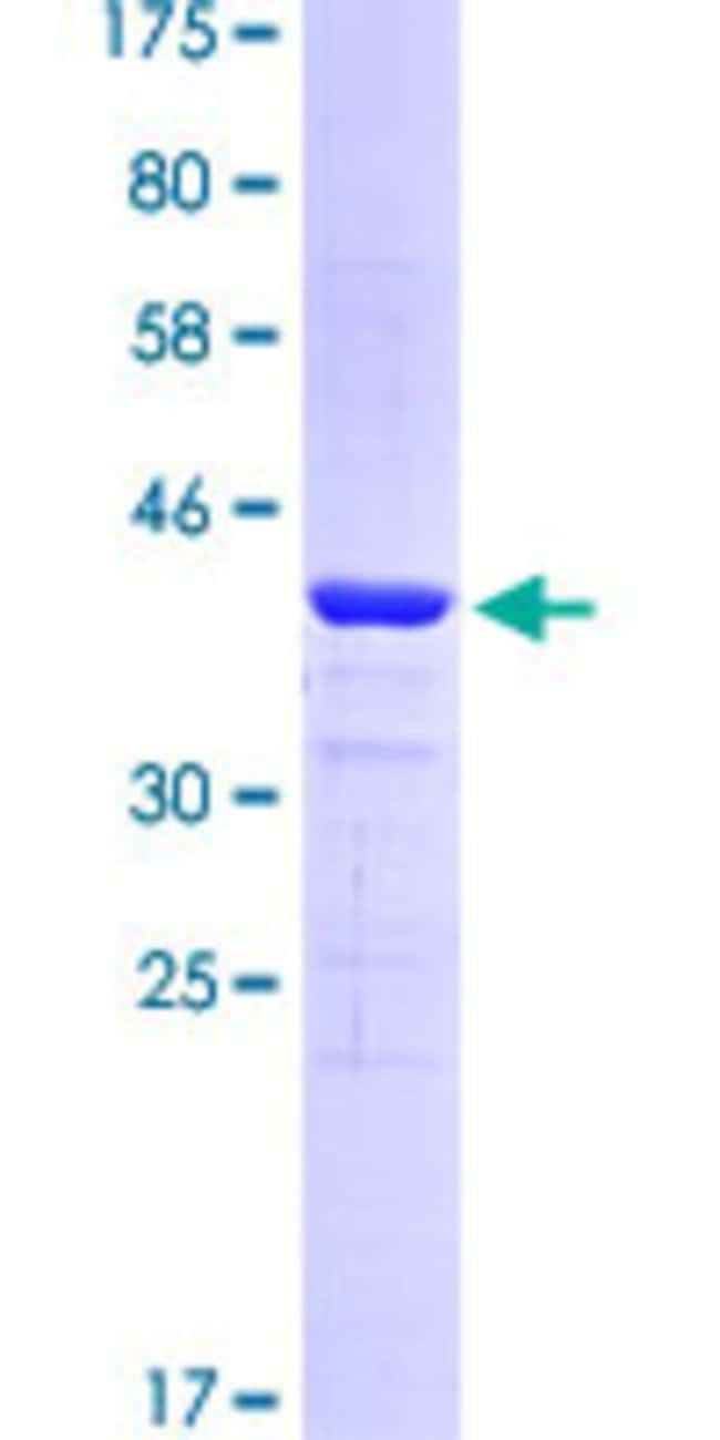 Abnova™Human STIP1 Partial ORF (AAH02987.1, 320 a.a. - 464 a.a.) Recombinant Protein with GST-tag at N-terminal 10μg Abnova™Human STIP1 Partial ORF (AAH02987.1, 320 a.a. - 464 a.a.) Recombinant Protein with GST-tag at N-terminal