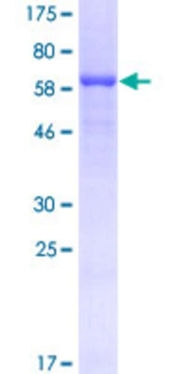 AbnovaHuman HEAB Full-length ORF (NP_006822.1, 1 a.a. - 425 a.a.) Recombinant