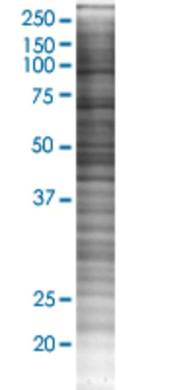 Abnova HEAB 293T Cell Transient Overexpression Lysate (Denatured) 100µL:Life