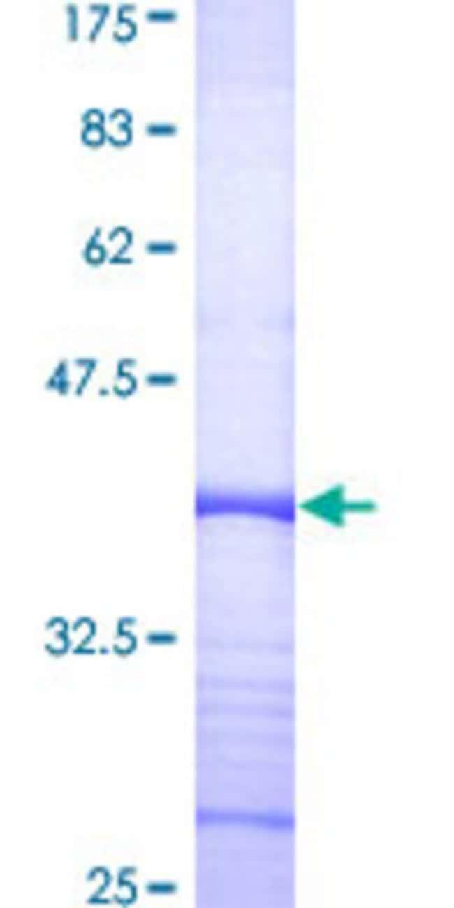 AbnovaHuman COPS6 Partial ORF (AAH02520, 218 a.a. - 327 a.a.) Recombinant