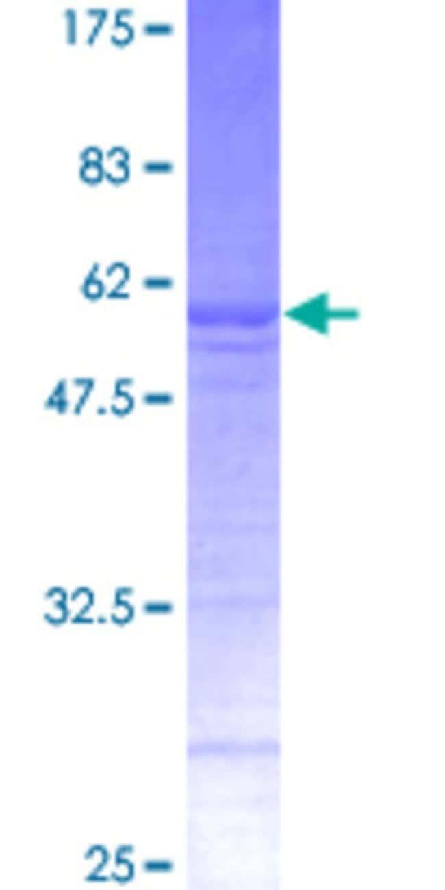 Abnova Human RAB32 Full-length ORF (NP_006825, 1 a.a. - 225 a.a.) Recombinant