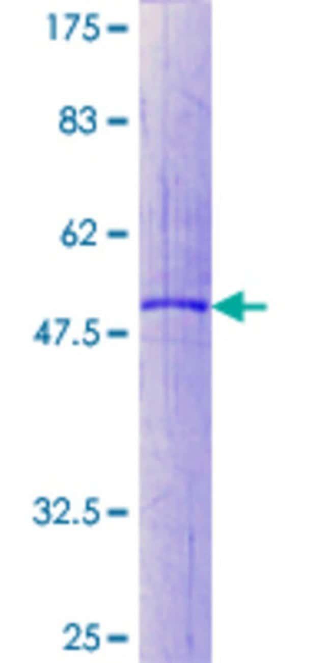 AbnovaHuman RAB32 Full-length ORF (NP_006825.1, 1 a.a. - 225 a.a.) Recombinant