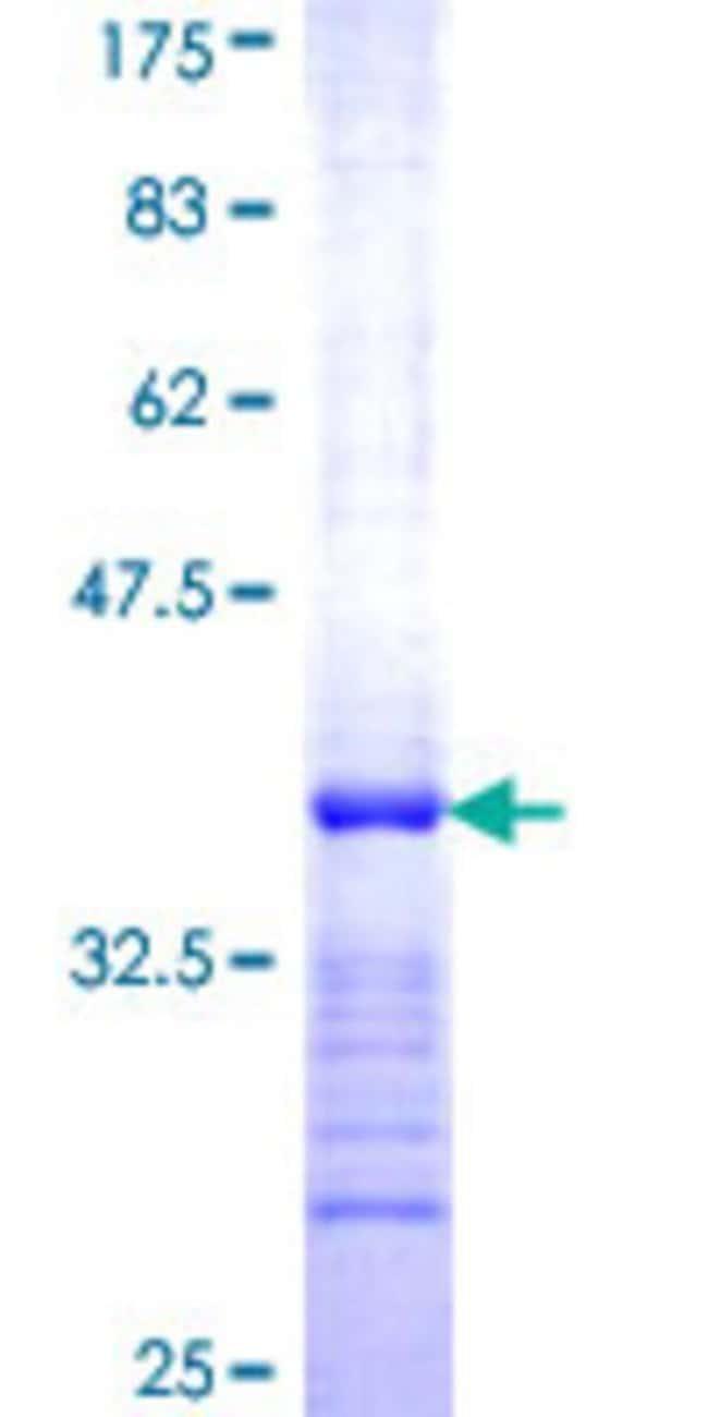 AbnovaHuman RAB32 Partial ORF (NP_006825, 136 a.a. - 225 a.a.) Recombinant