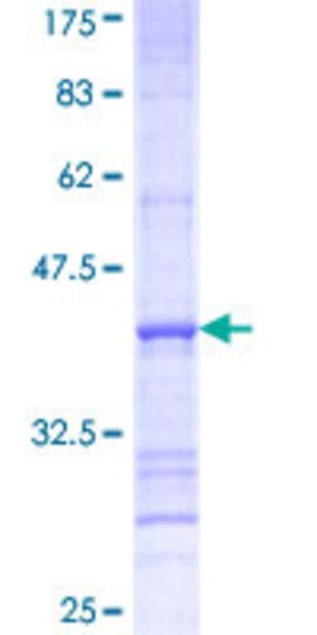 Abnova™Human SLC27A3 Partial ORF (NP_077306, 635 a.a. - 730 a.a.) Recombinant Protein with GST-tag at N-terminal 10μg Abnova™Human SLC27A3 Partial ORF (NP_077306, 635 a.a. - 730 a.a.) Recombinant Protein with GST-tag at N-terminal