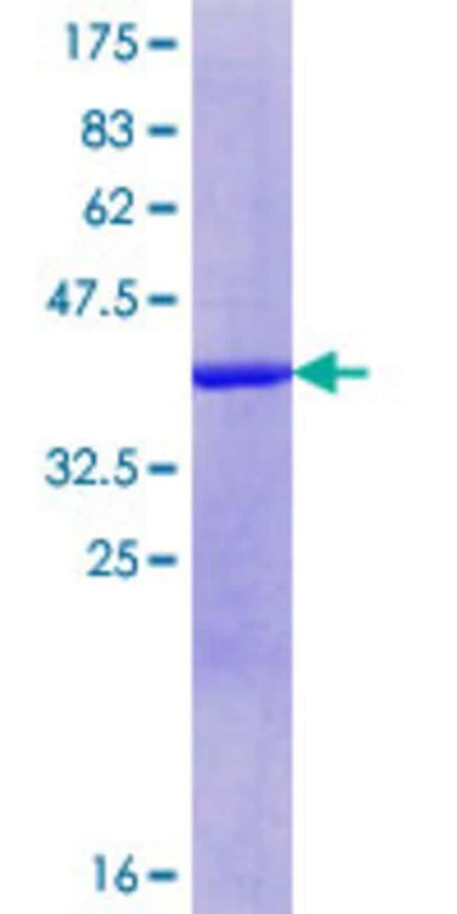 AbnovaHuman DIPA Partial ORF (NP_006839.2, 1 a.a. - 110 a.a.) Recombinant