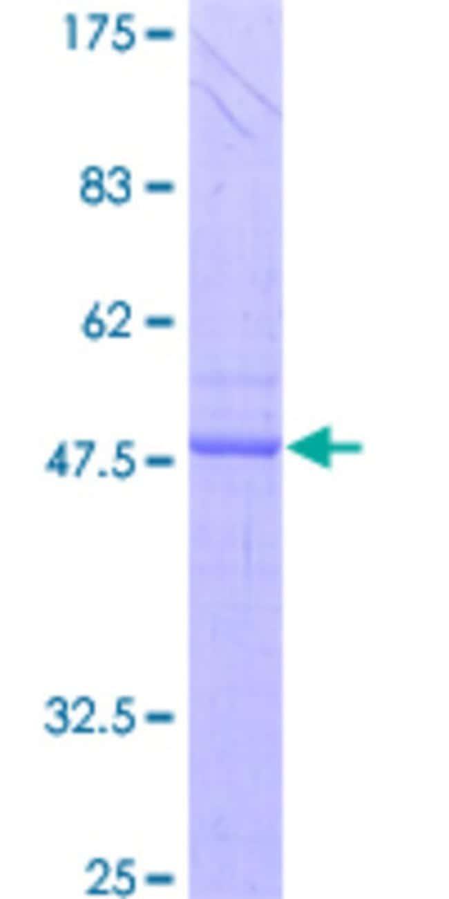 Abnova Human IL24 Full-length ORF (AAH09681, 1 a.a. - 207 a.a.) Recombinant