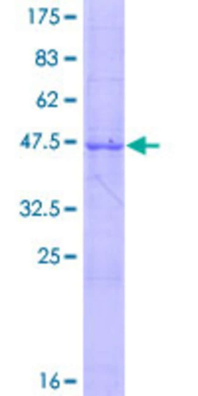 Abnova Human IL24 Full-length ORF (NP_006841.1, 1 a.a. - 206 a.a.) Recombinant